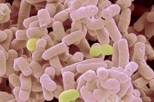 Bacteria Resistant Discovered by Scientists for Treatments